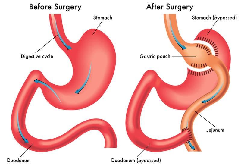 Gastric Bypass - maagverkleining