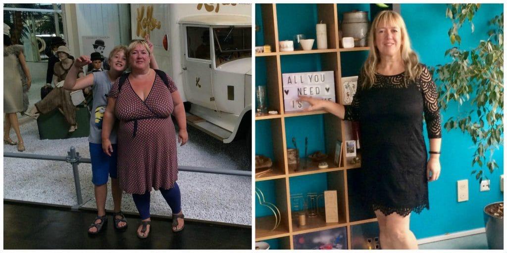 maagverkleining: voor en na 1 jaar later